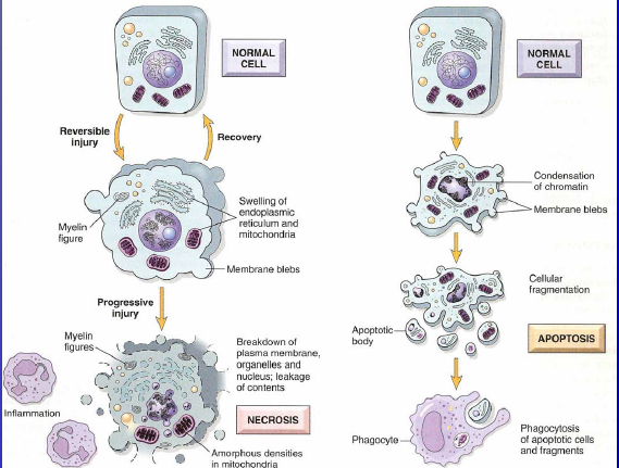 comparison of necrosis and apoptosis essay Writepass - essay writing - dissertation topics [toc]introductionreferencesrelated introduction apoptosis in the hair follicle is programmed cell death, which occurs at a point during the cell cycle, when a sequence of programmed events causes the cells to be eliminated without the release of waste and harmful substances into the.